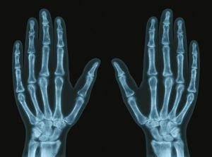Hands, X-ray