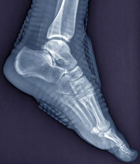 Healthy ankle joint, X-ray