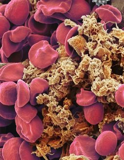 Red blood cells and platelets, SEM